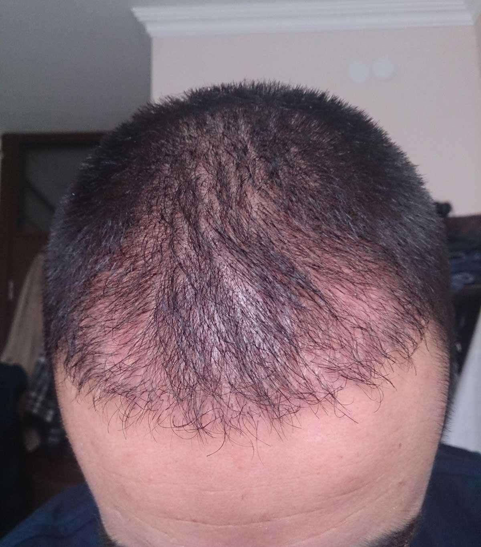 Ekilen Saç köklerinin Çıkmaması