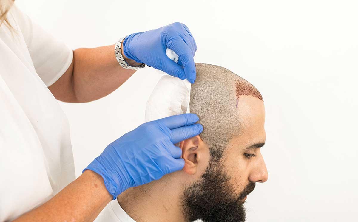 Saç Ekimi Sonrası Pansuman ve İlk Yıkama
