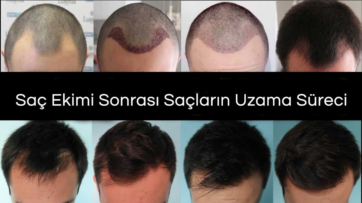 Saç Ekimi Sonrası Saçların Uzama Süreci
