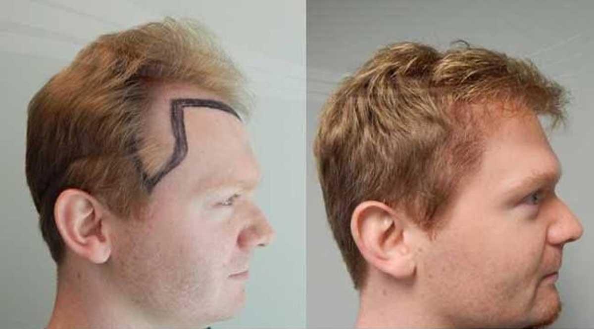 Tıraşsız Saç Ekimi Avantajları ve Dezavantajları Nelerdir