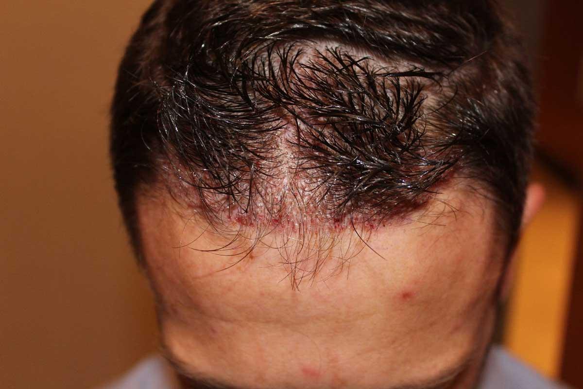 Traşsız Saç Ekimi Nasıl Yapılır