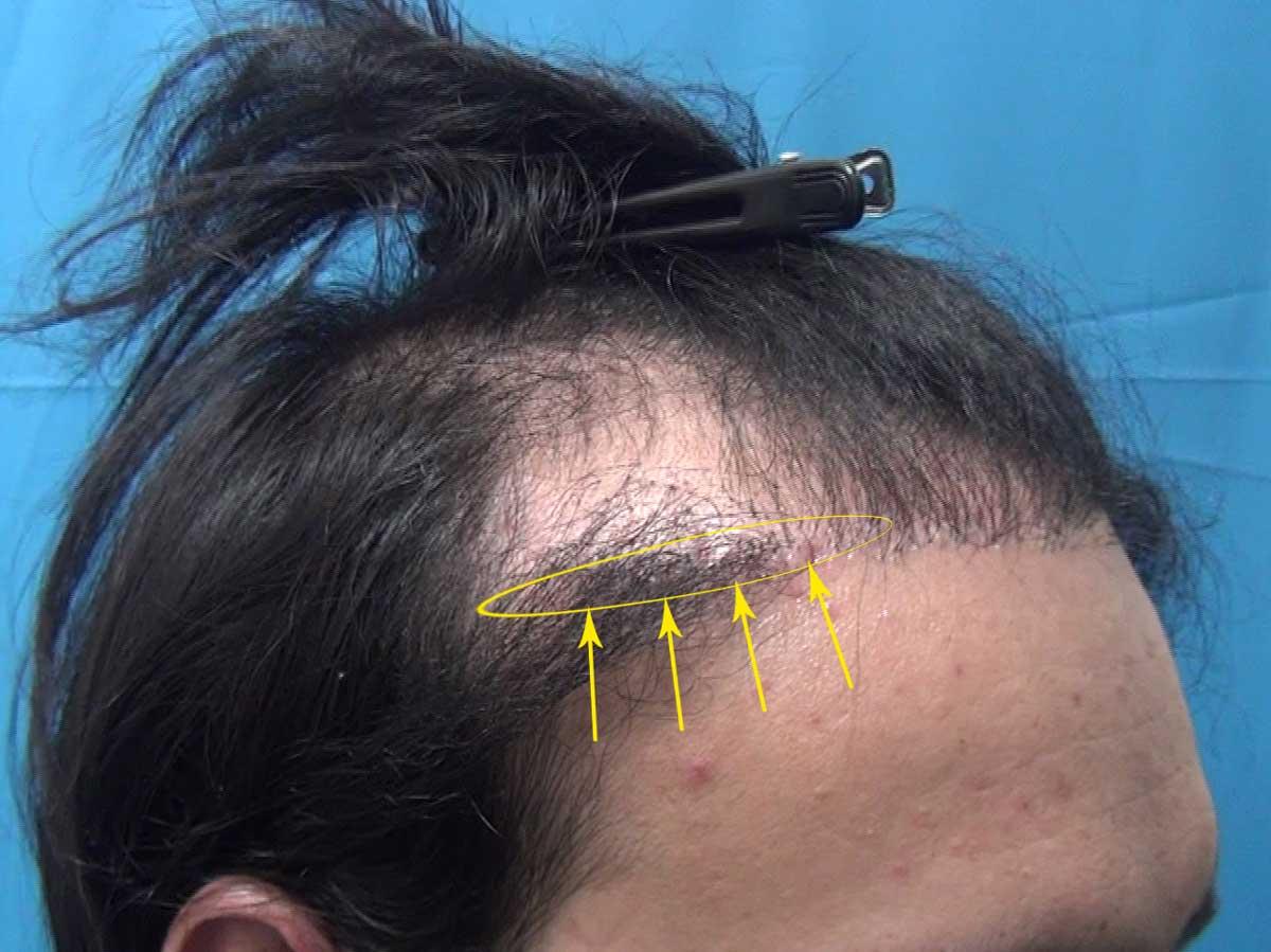 Saç Ekiminin Yan Etkileri Yanlış Yöne Uzayan Saç Kökleri