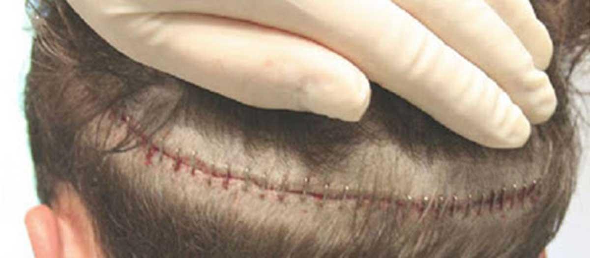 Fut Saç Ekimi Yönteminin Dezavantajları