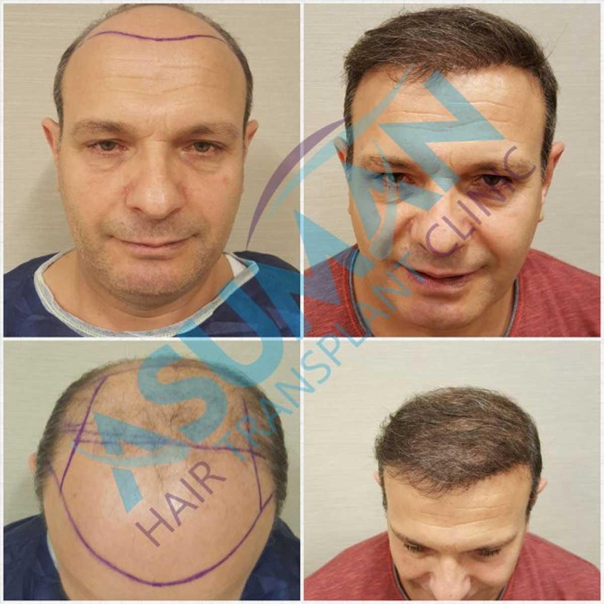 Asuman Hair Transplant Sonuçları 1