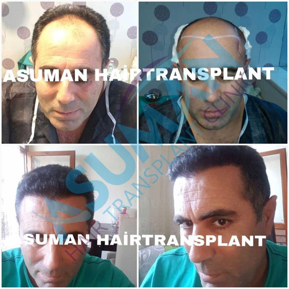 Asuman Hair Transplant Sonuçları 6