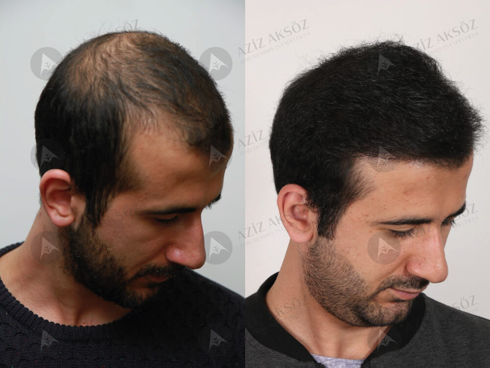 Aziz Aksöz Saç Ekimi Sonuçları 1