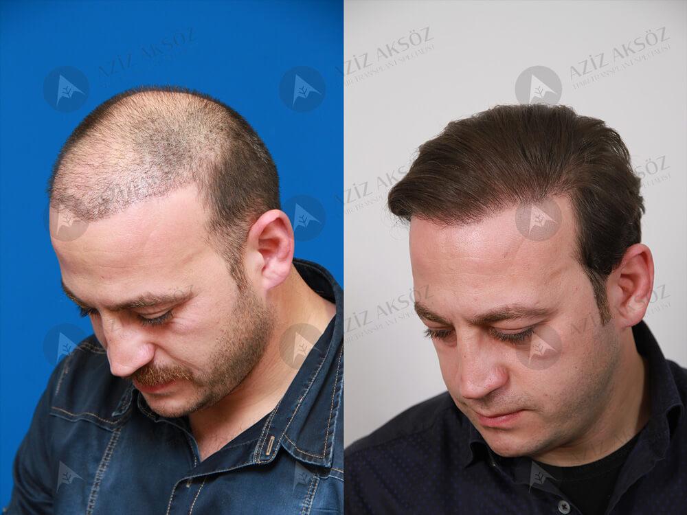 Aziz Aksöz Saç Ekimi Sonuçları 2