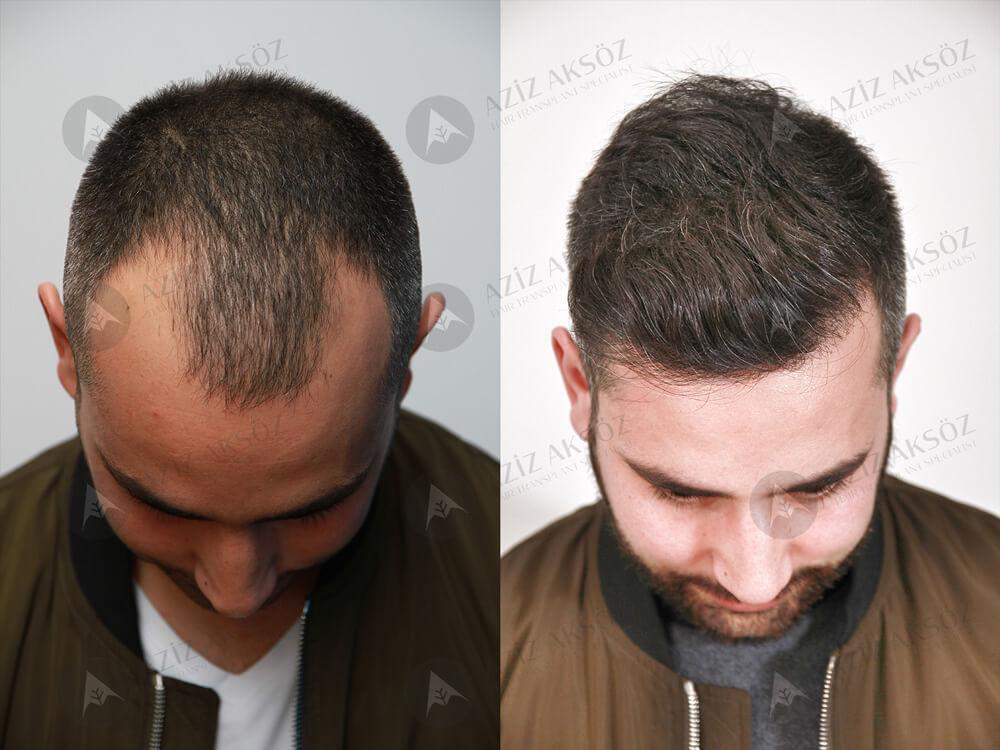 Aziz Aksöz Saç Ekimi Sonuçları 3