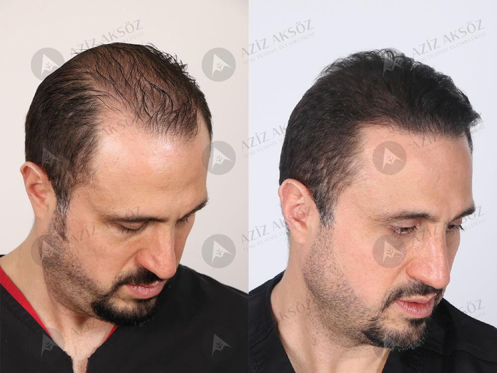 Aziz Aksöz Saç Ekimi Sonuçları 4