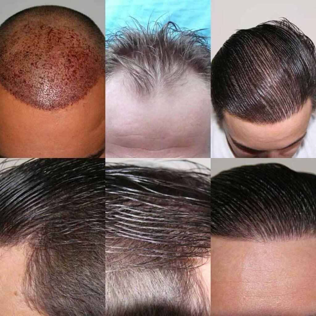 Dr. Muttalip Keser Saç Ekimi Sonuçları 2