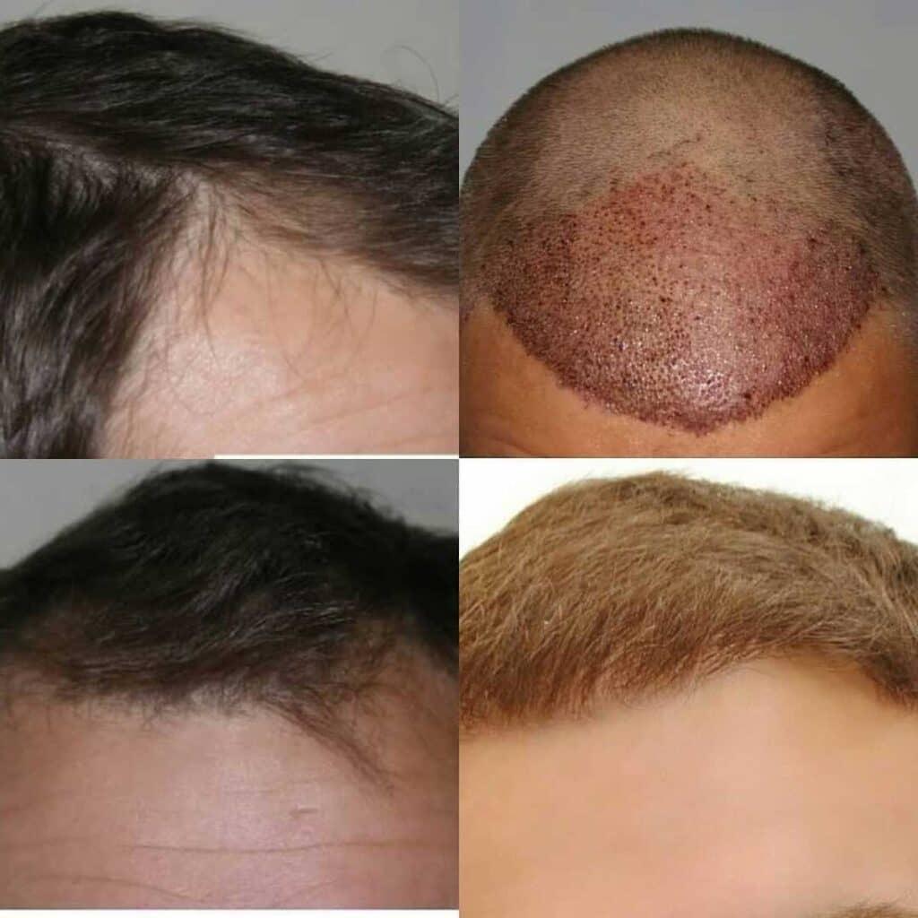 Dr. Muttalip Keser Saç Ekimi Sonuçları 3