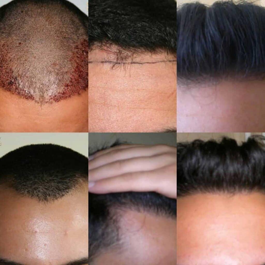 Dr. Muttalip Keser Saç Ekimi Sonuçları 4