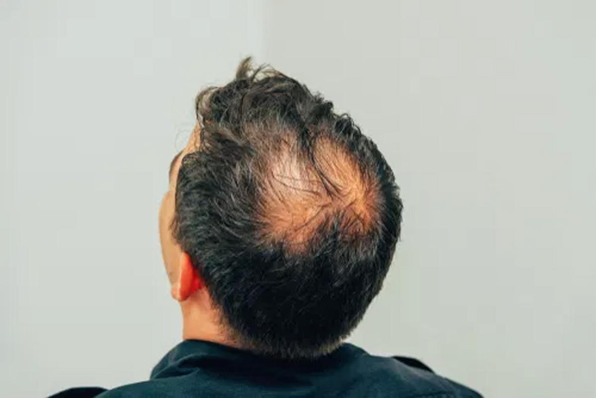 Erkeklerde Saç Dökülmesi ve Erkek Tipi Dökülme