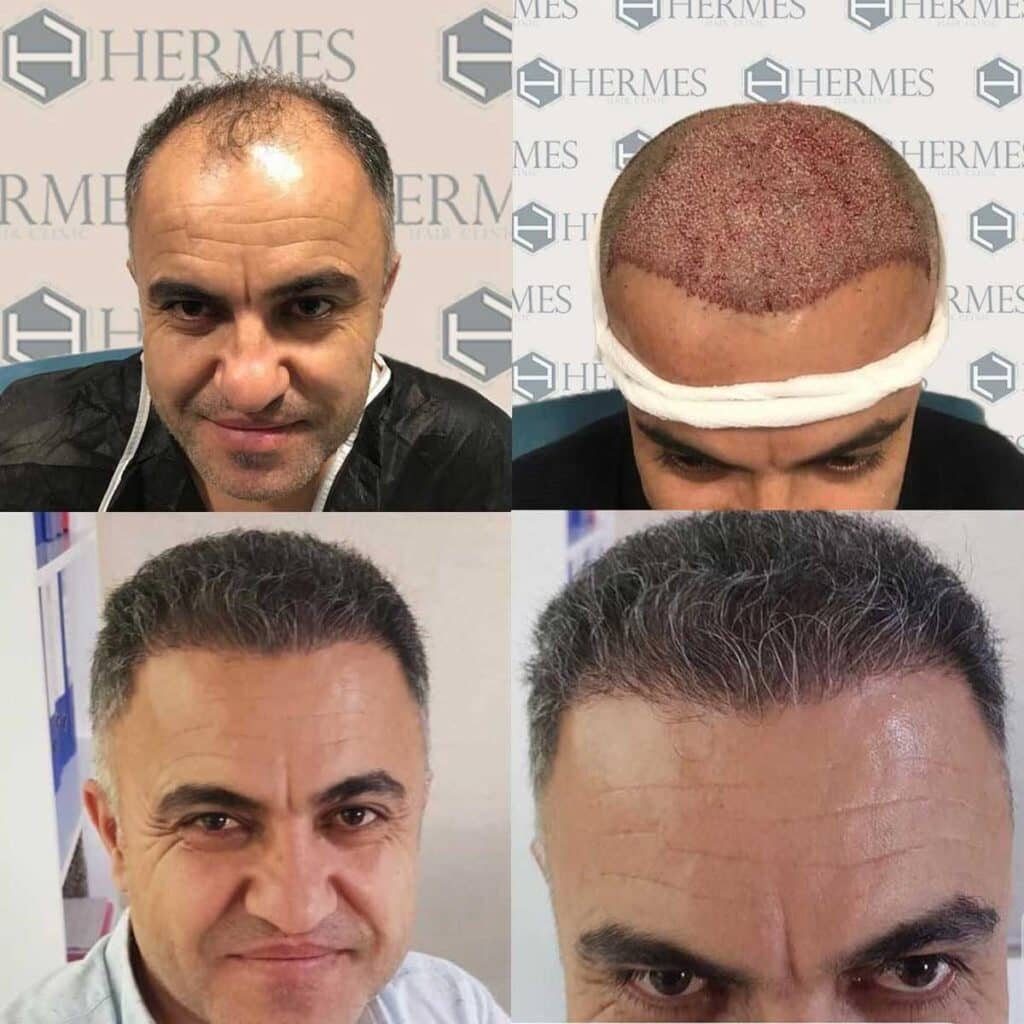 Hermest Saç Ekimi Sonuçları 3