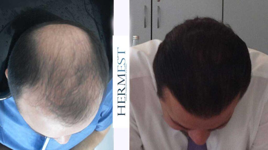 Hermest Saç Ekimi Sonuçları 6