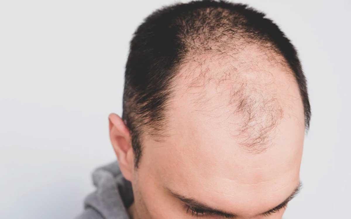 Saç Dökülmesinin Seviyesi