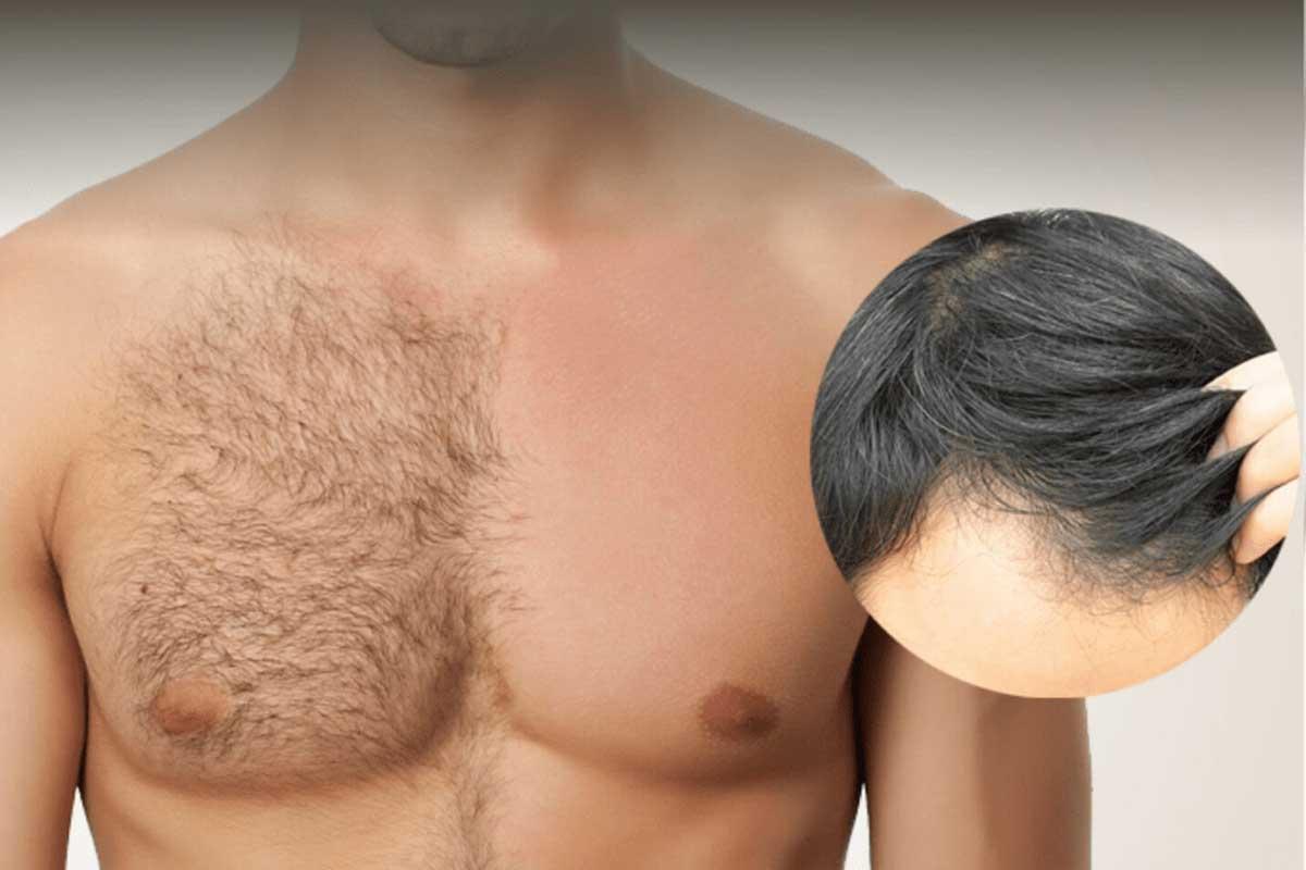 Saç Ekim Planlamasında Dikkat Edilmesi Gereken Konular