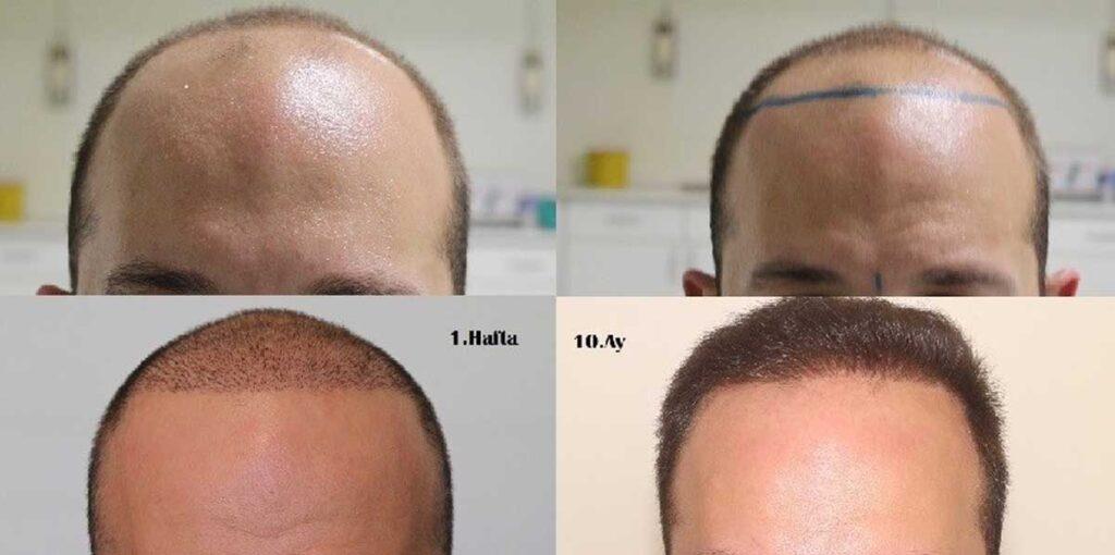 Serdar Gökrem Saç Ekimi Sonuçları 1