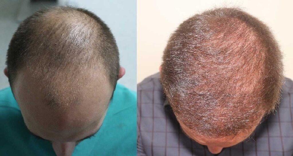 Serdar Gökrem Saç Ekimi Sonuçları 2