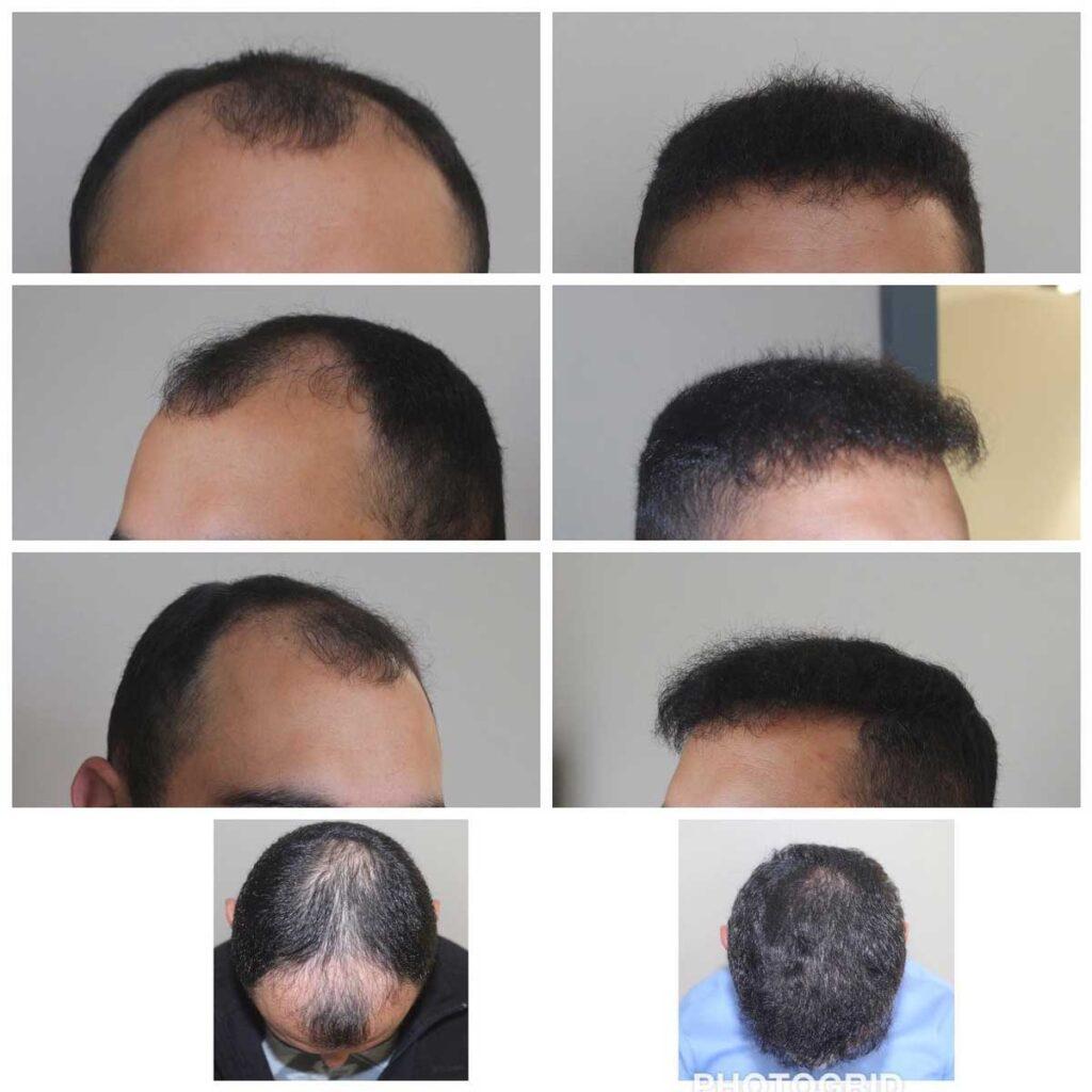 Serdar Gökrem Saç Ekimi Sonuçları 3
