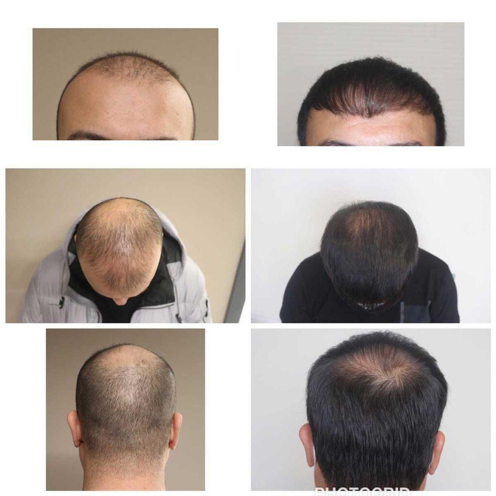 Serdar Gökrem Saç Ekimi Sonuçları 4