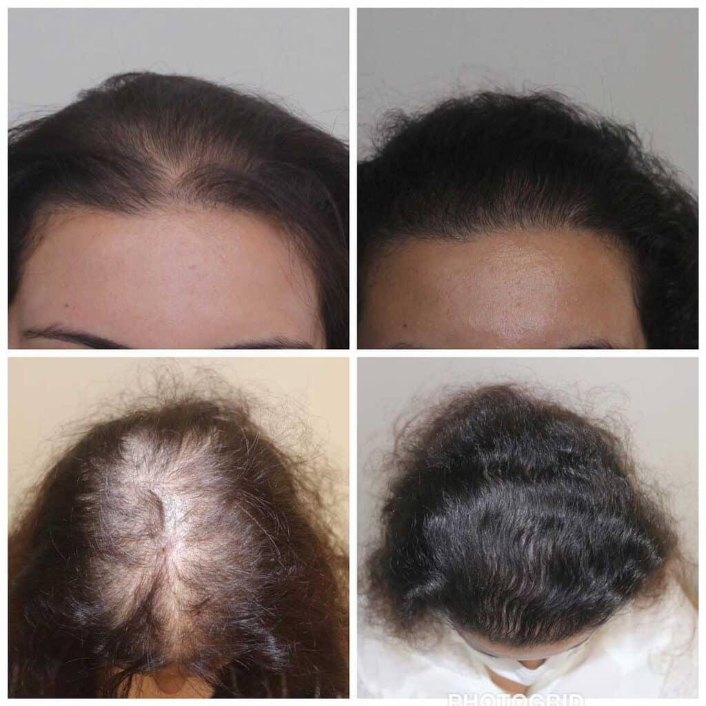 Serdar Gökrem Saç Ekimi Sonuçları 5