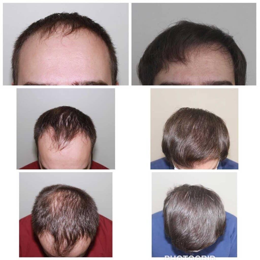 Serdar Gökrem Saç Ekimi Sonuçları 6