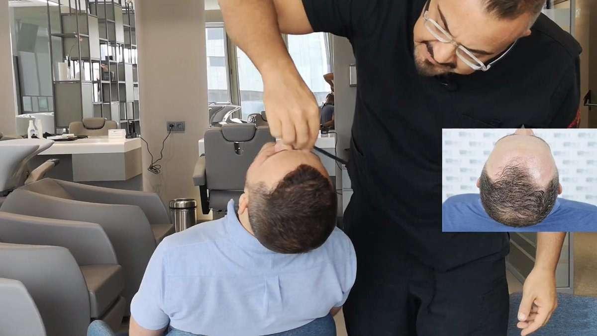 Asmed Hair transplant Saç Ekim Merkezi