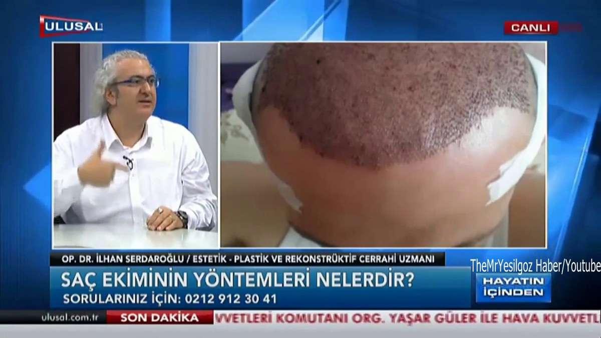 İlhan Serdaroğlu Saç Ekim Merkezi