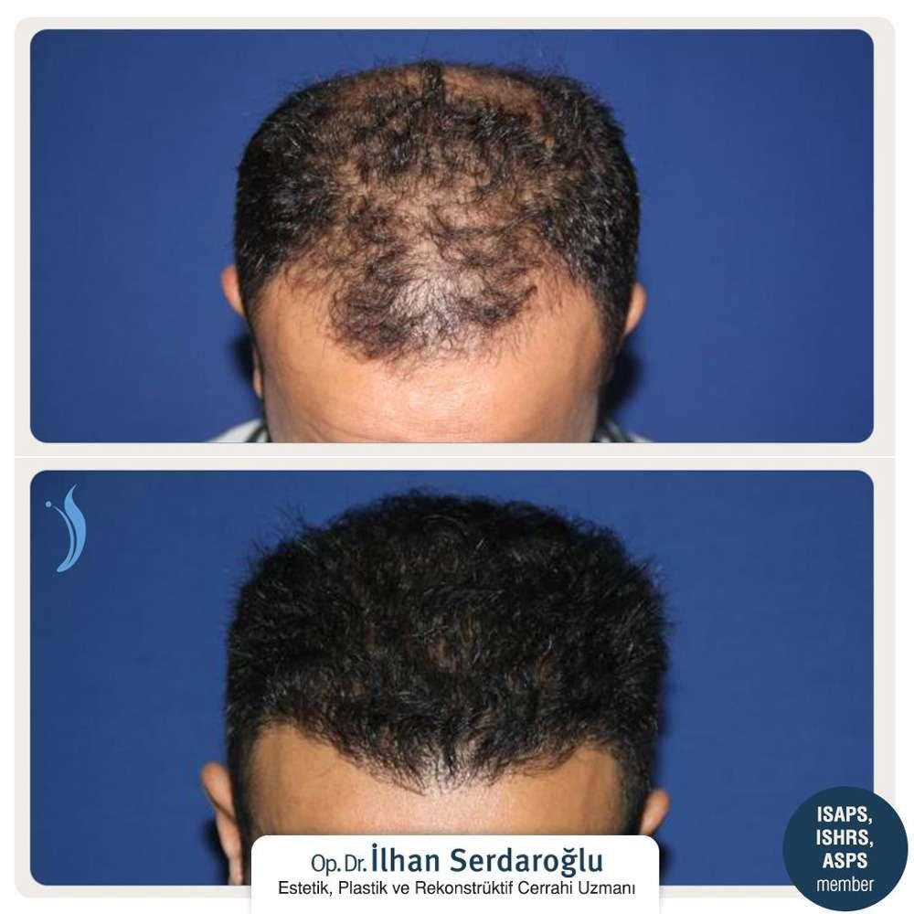 İlhan Serdaroğlu Saç Ekimi Sonuçları 1