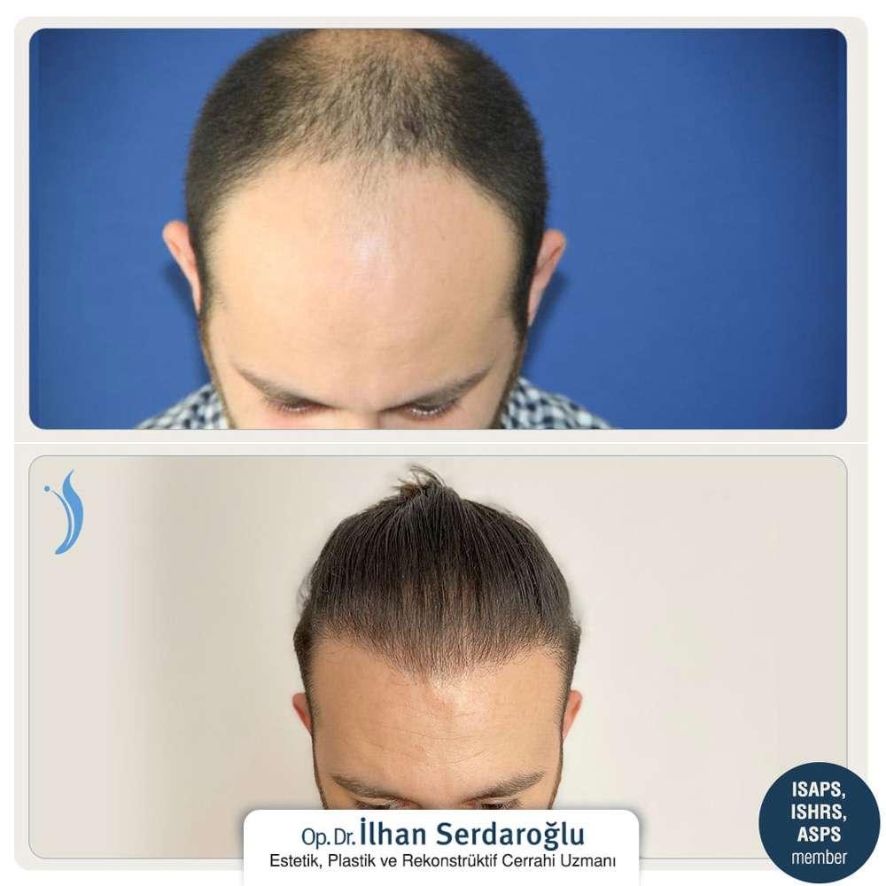 İlhan Serdaroğlu Saç Ekimi Sonuçları 2