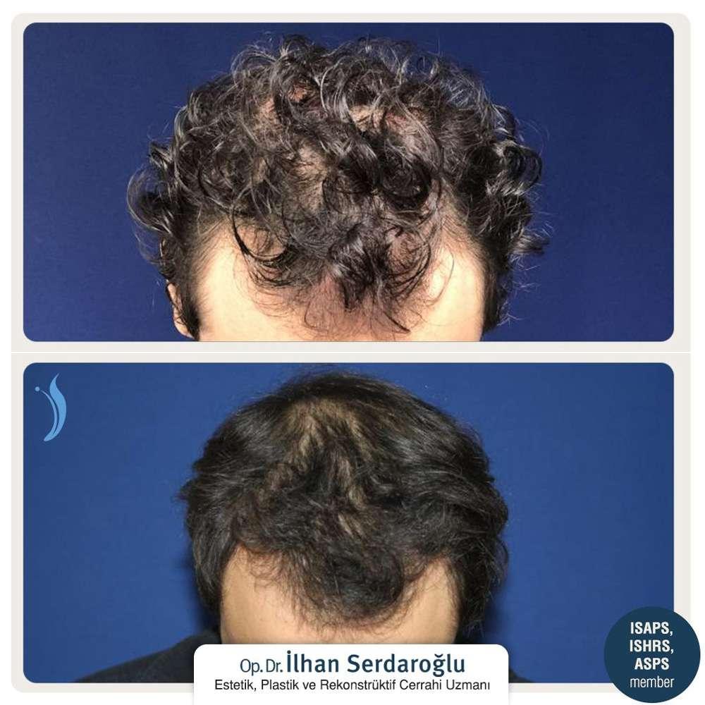 İlhan Serdaroğlu Saç Ekimi Sonuçları 3
