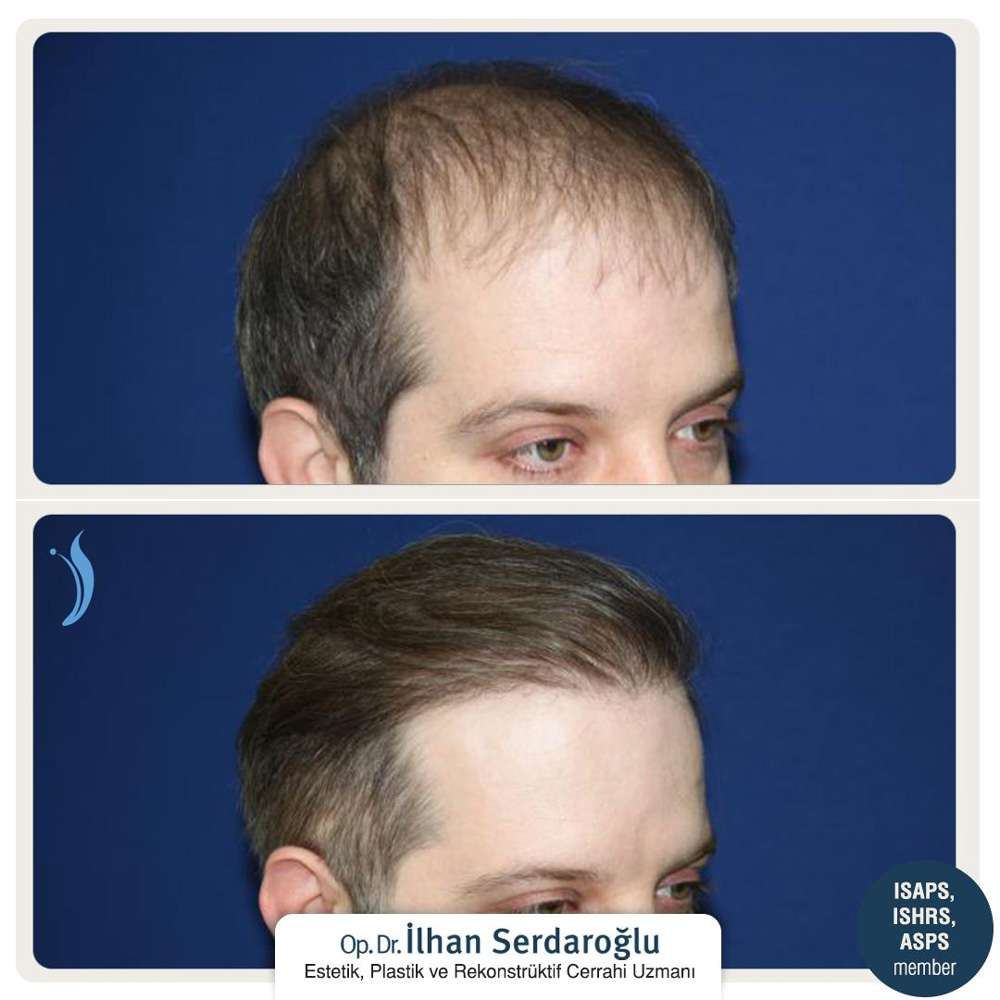 İlhan Serdaroğlu Saç Ekimi Sonuçları 4