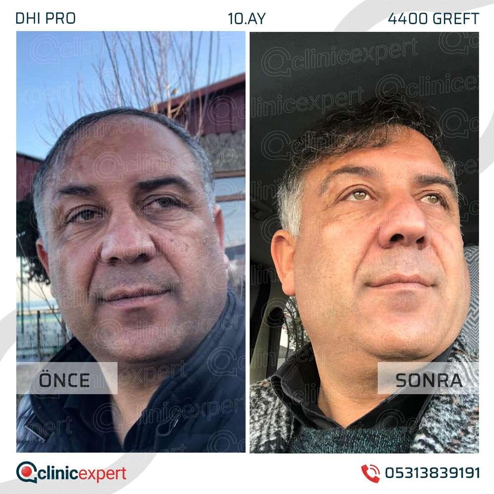 Clinicexpert Saç Ekimi Sonuçları 1