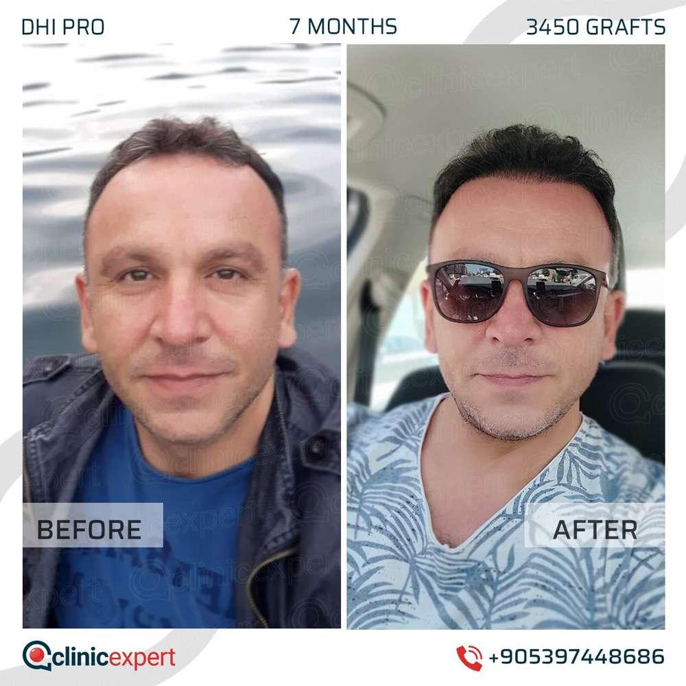Clinicexpert Saç Ekimi Sonuçları 2
