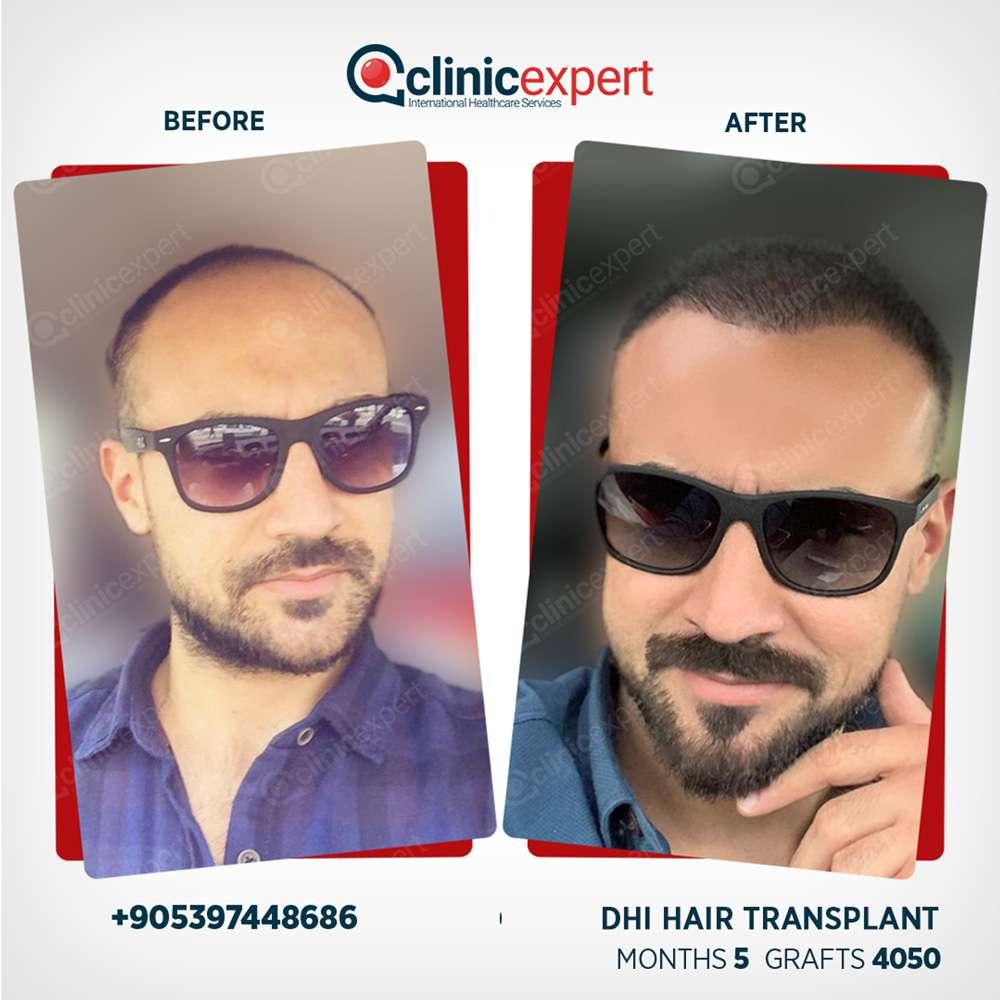 Clinicexpert Saç Ekimi Sonuçları 3