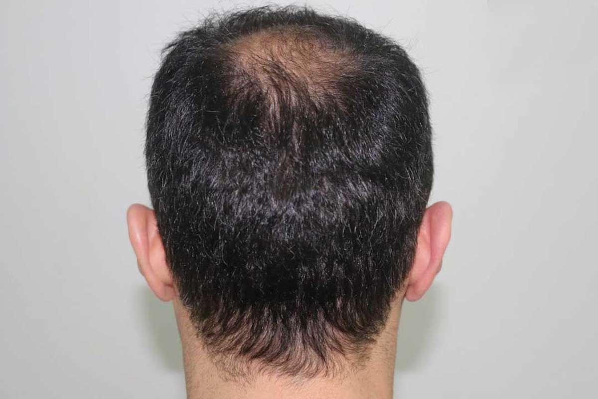 Ense Bölgesindeki Saç Köklerinin Özellikleri