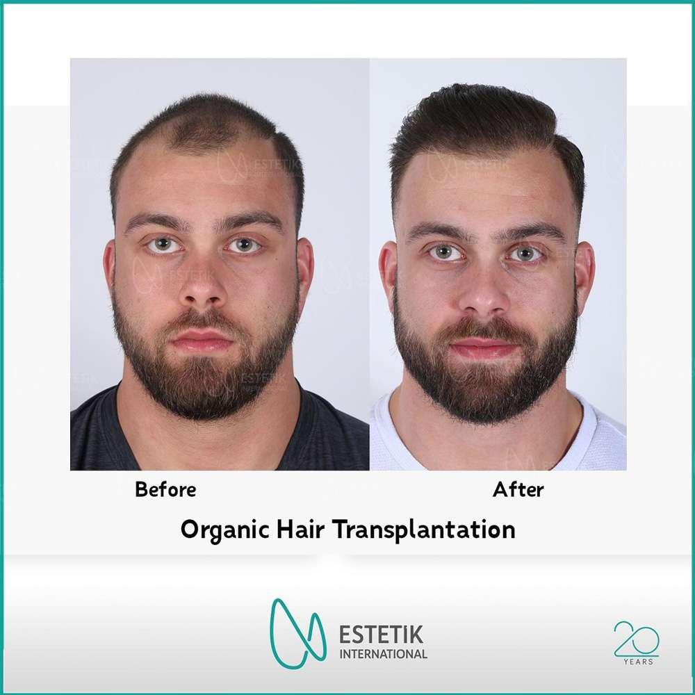Estetik International Saç Ekimi Sonuçları 4