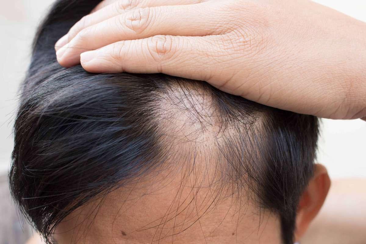 Her Saç Dökülmesi Kelleştirir Mi? Ekilen Saçlar