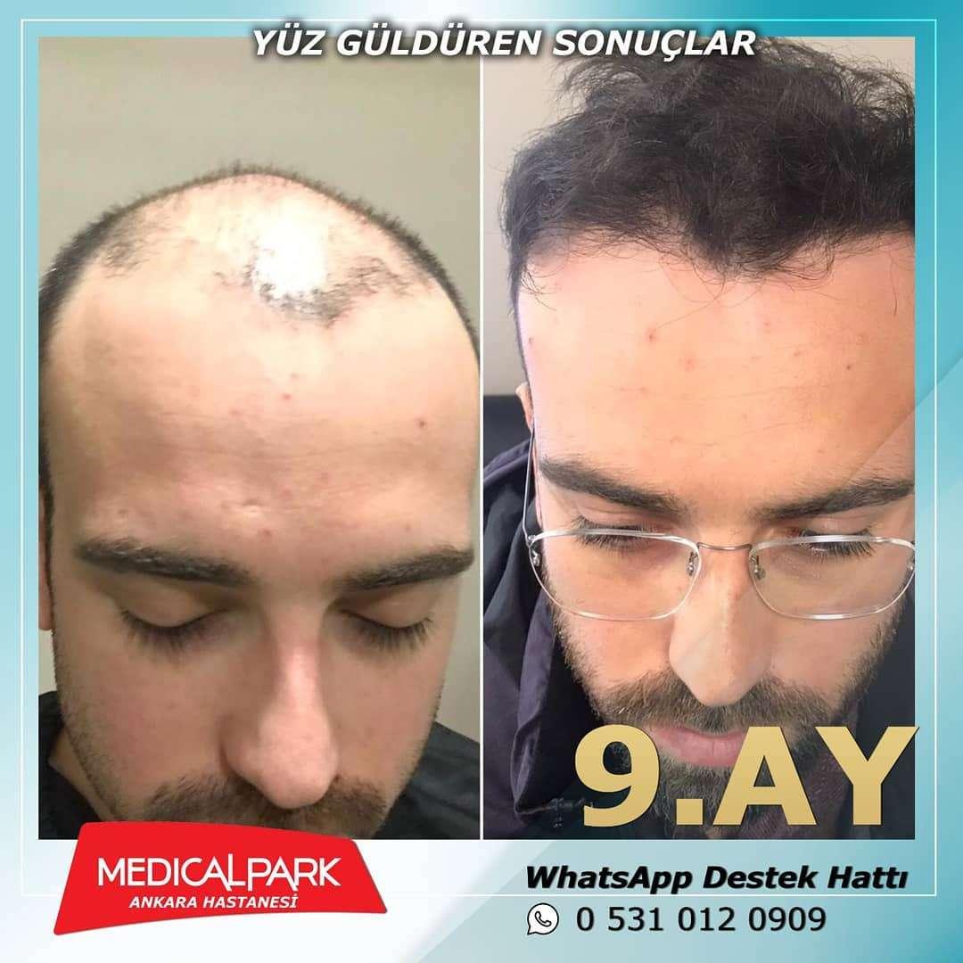 Medical Park Saç Ekimi Sonuçları 1