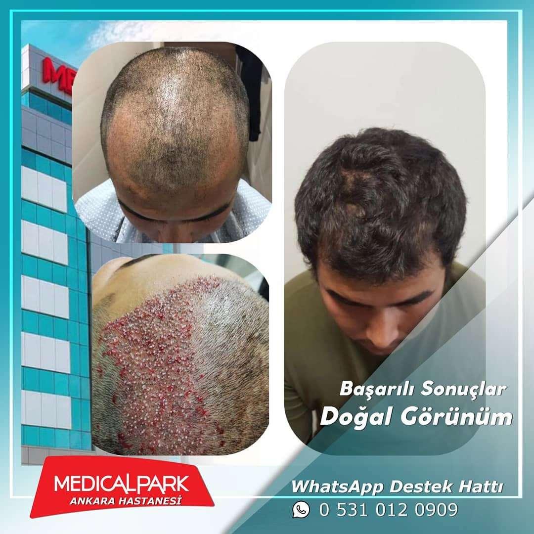Medical Park Saç Ekimi Sonuçları 2