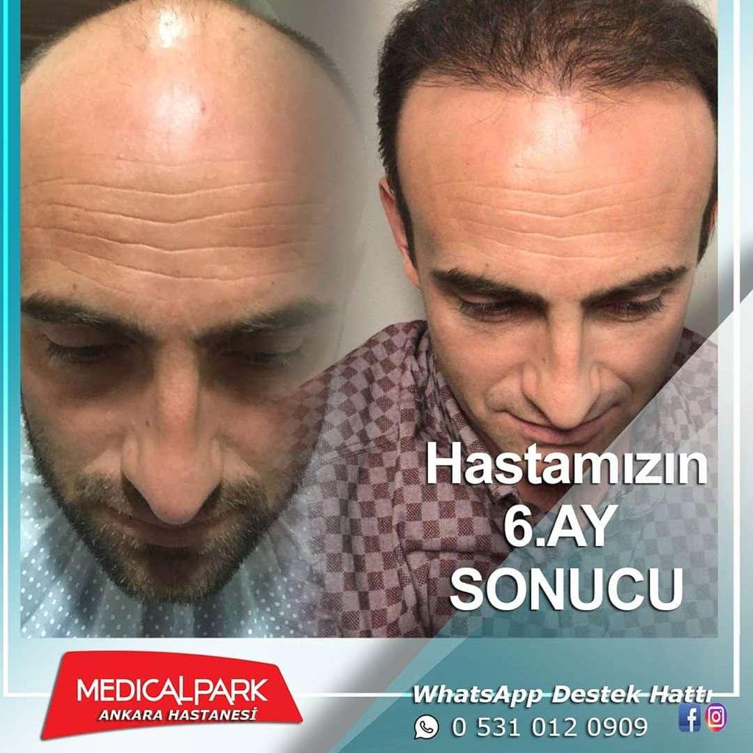Medical Park Saç Ekimi Sonuçları 3