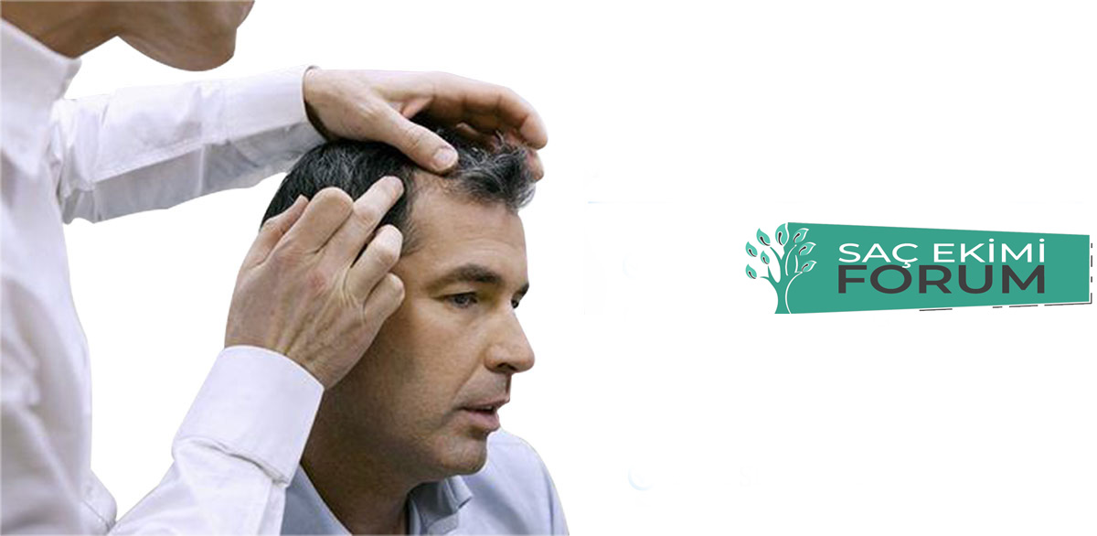 Saç dikimi Öncesi Bilmeniz Gerekenler