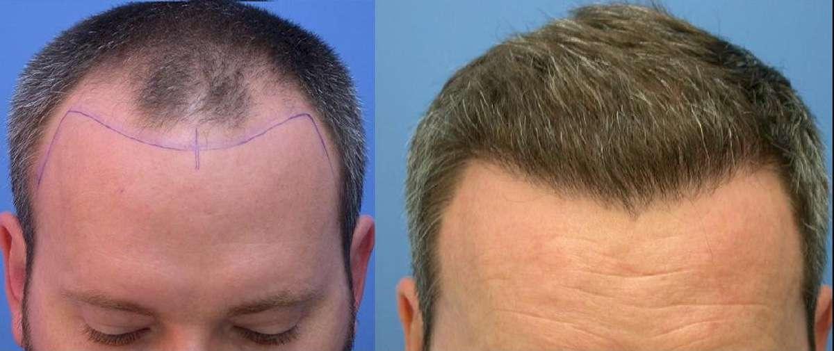 Saç Dikiminde Doğal Görüntünün Önemi