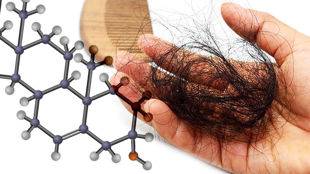 Saç Dökülmesi Seviyesi Nasıl Analiz Edilir?