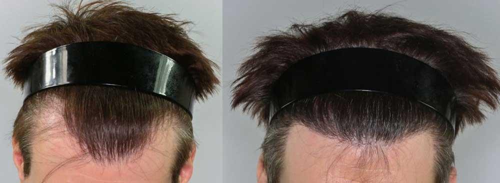Acıbadem Saç Ekimi Sonuçları 3