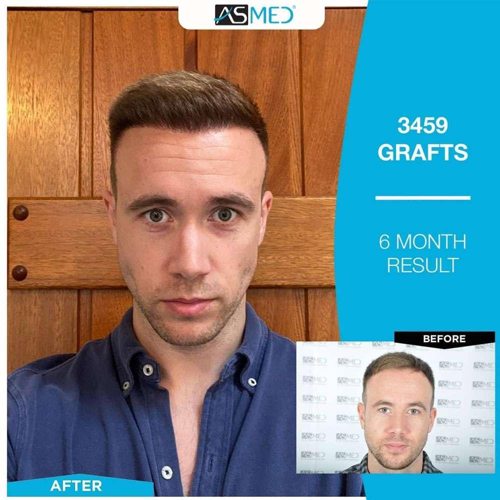 Asmed Saç Ekimi Sonuçları 4