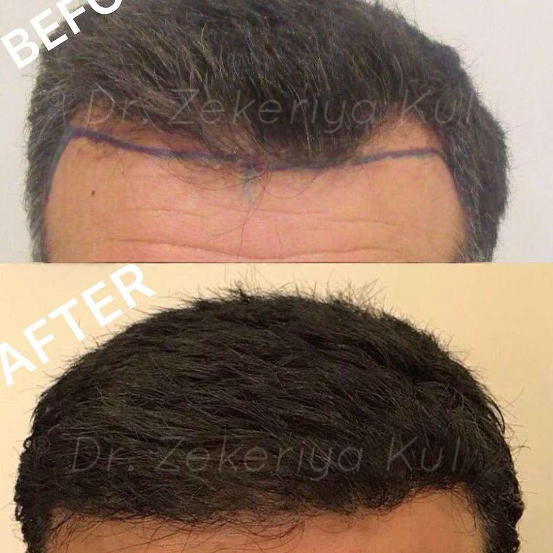 Zekeriya Kul Saç Ekimi Sonuçları 3