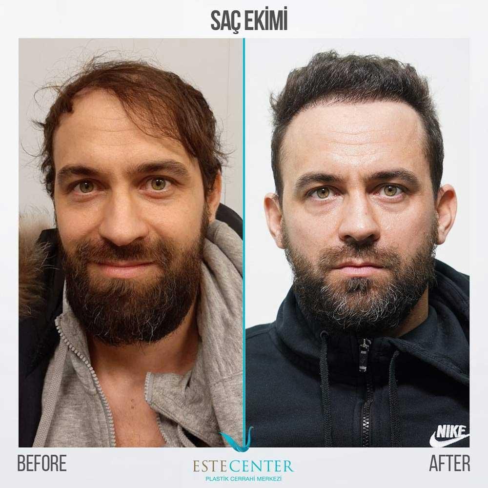 Estecenter Saç Ekimi Sonuçları 1