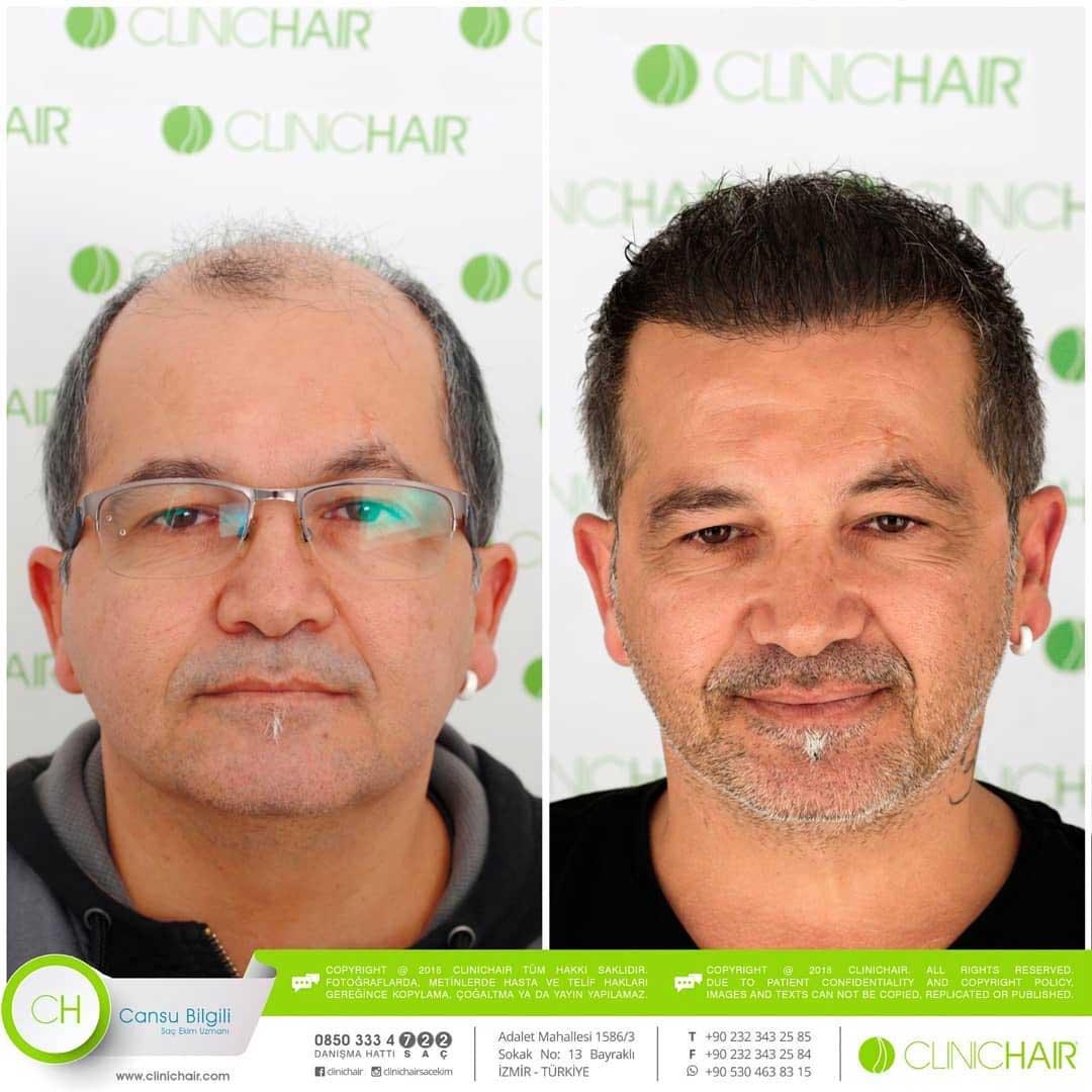 Clinichair Saç Ekimi Sonuçları 1